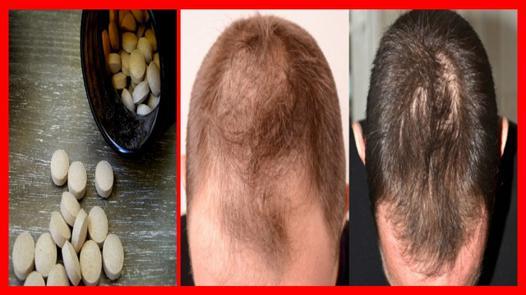 levure pour les cheveux